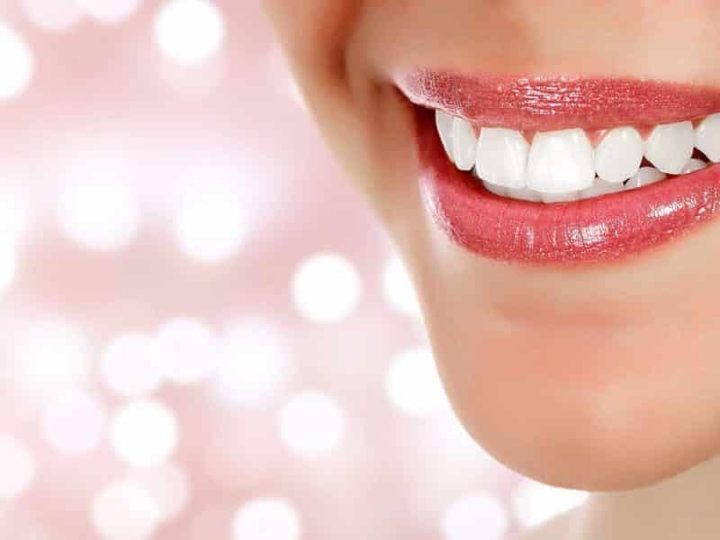 Diş Beyazlatma Operasyonu