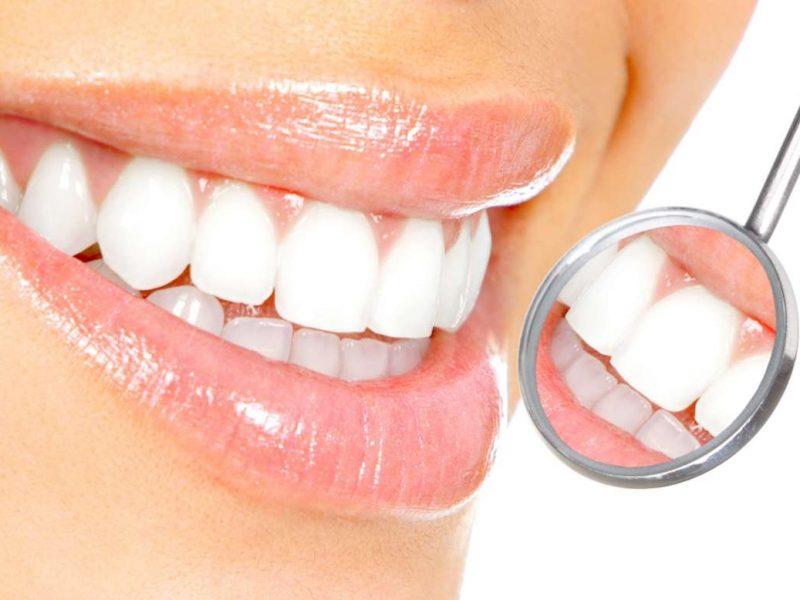 Eryaman Diş Hastanesi Hizmetleri Ve Fırsatları