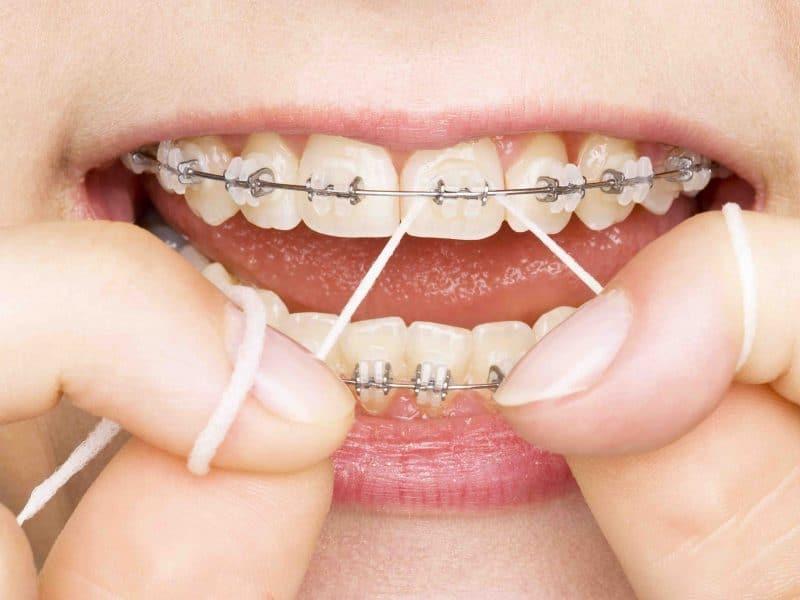 Eryaman Diş Hastanesi Hizmetimizde