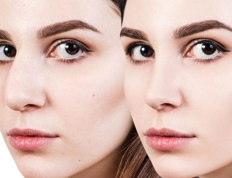 Revizyon Rinoplasti Ameliyatında Burna Nasıl Şekil Verilir?