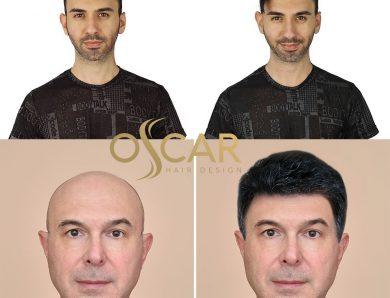 En Uygun Protez Saç Fiyatları Oscar Hair Protez Saç Merkezinde